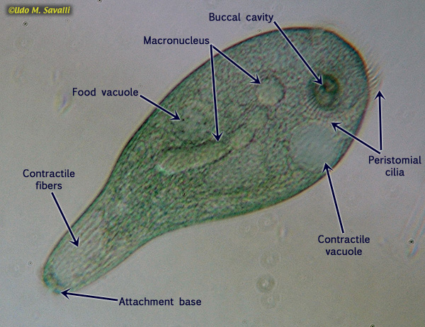 Amoeba Pictures Labeled http://www.savalli.us/BIO385/Diversity/01.Protozoa.html